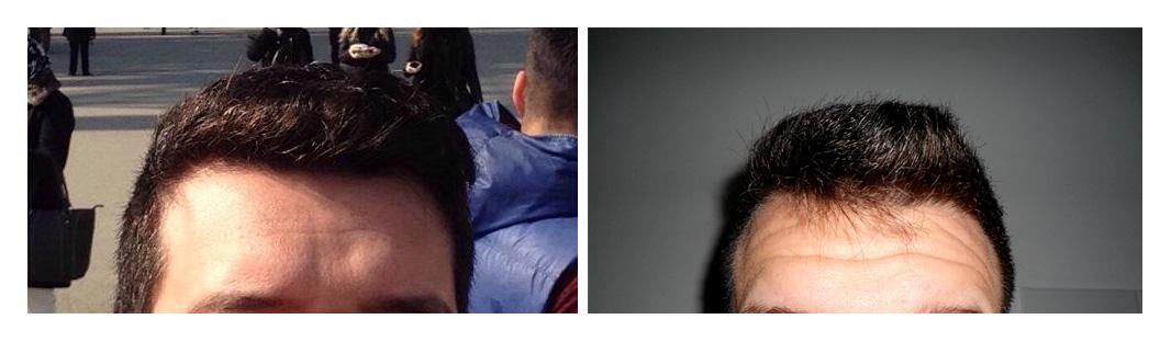 acid hialuronic frunte